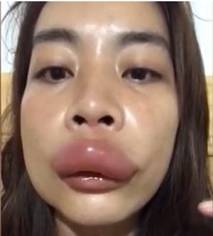 ハチに刺されて唇がはれ上がったっ女性