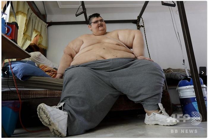 世界で最も重かった男性、新型コロナ克服