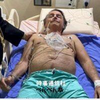 あのブラジル大統領が腸閉塞で入院